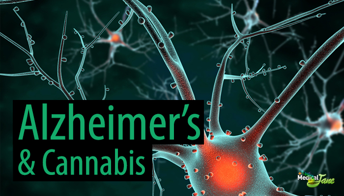 Study: Cannabis Could Help Prevent Alzheimer's Disease