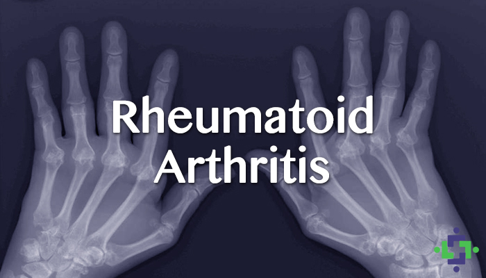 Study: Cannabis May Help Manage Rheumatoid Arthritis Symptoms