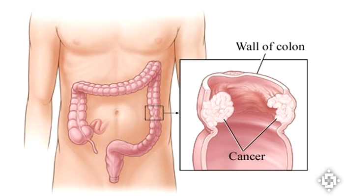 Study Shows Cannabis Extracts Rich In Cannabidiol (CBD) May Effectively Treat Colon Cancer