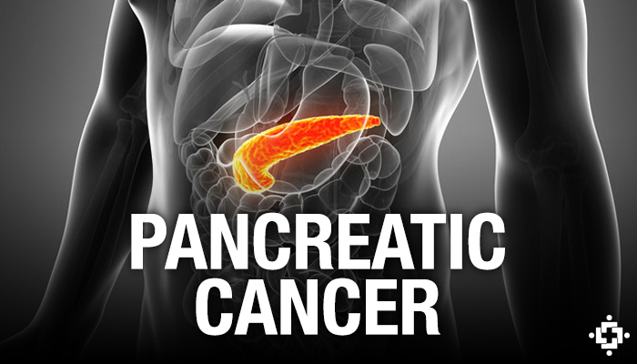 Study: Cannabis Plays A Key Role In Pancreatic Cancer Treatment