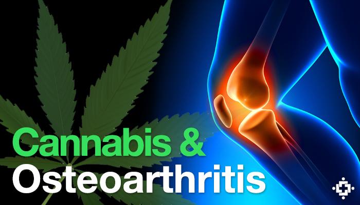 Study: Cannabinoid Treatment May Help Manage Pain From Osteoarthritis