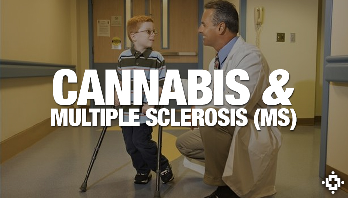 Sativex Shown To Treat Spasticity In Multiple Sclerosis (MS)