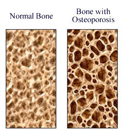 a study on osteoporosis a disease of the bones Osteoporosis is when the bones in our body become weak and brittle and can increase the risk of fractures osteoporosis linked to heart disease in elderly: study.
