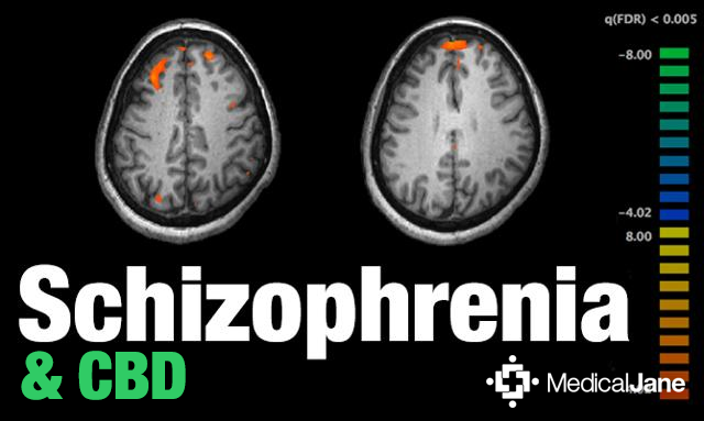 Study: CBD-Based Therapy May Help Treat Schizophrenia