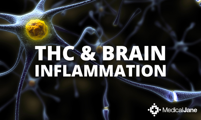 Study: Ultra-Low Doses Of THC May Help Protect Against Neurodegenerative Diseases