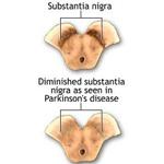 substantia nigra b