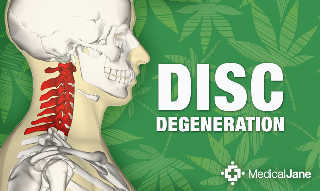 Study: Cannabidiol (CBD) May Prevent Degenerative Disc Disease