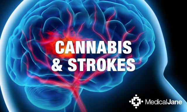 Study: Cannabis May Help Reduce Brain Damage Caused By Ischemic Strokes