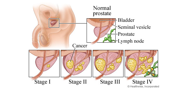 the symptoms and treatment of prostate cancer a malignant disease