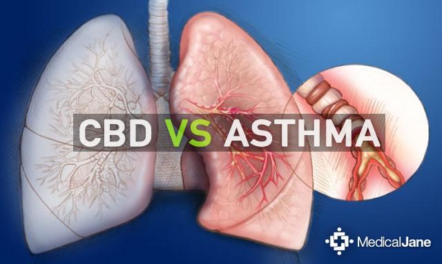Study: Cannabidiol (CBD) as an Effective Asthma Treatment