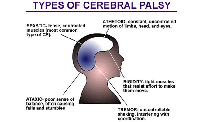 dating with mild cerebral palsy