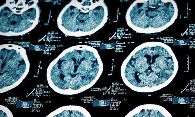4 Ways Medical Marijuana Can Help Your Brain